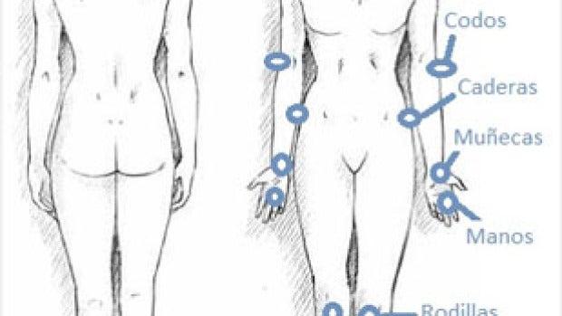 Zonas de artritis