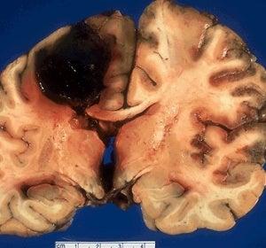 Hemorragia cerebral en el neocortex producida por la cocaína