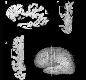 Vista de la zona dañada en la imagen del cerebro de Louis-Victor Leborgne