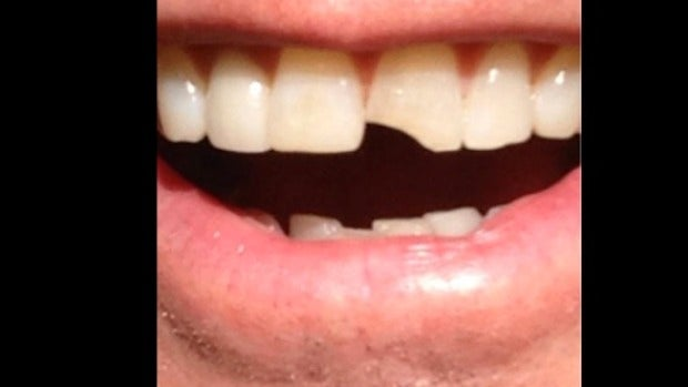 Jim Carrey con el diente partido