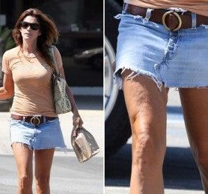 La modelo Cindy Crawford también tiene celulitis