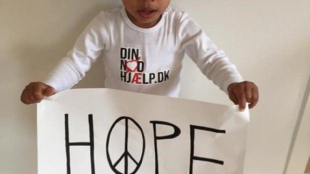 El pequeño Hope muestra su recuperación