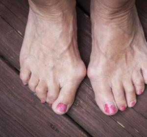 Un ejemplo de pies con juanetes