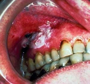 Paciente cáncer de boca