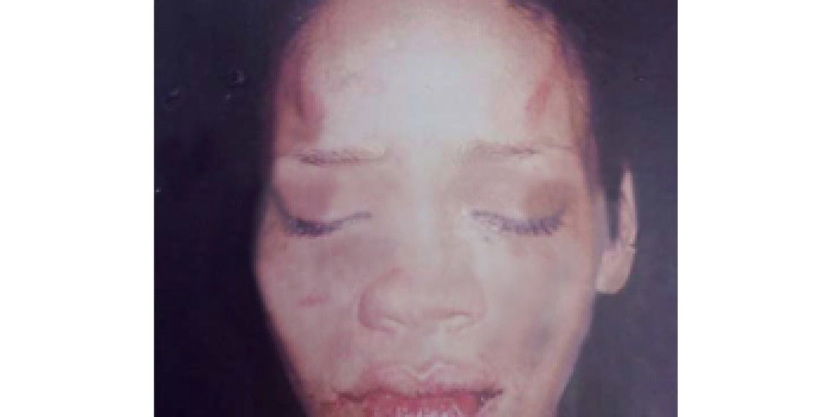 Rihanna tras ser maltratada por Chris Brown