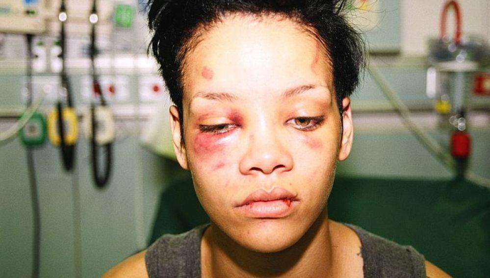 Rihanna agredida por Chris Brown