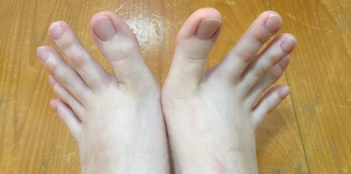 ¿Manos o pies?