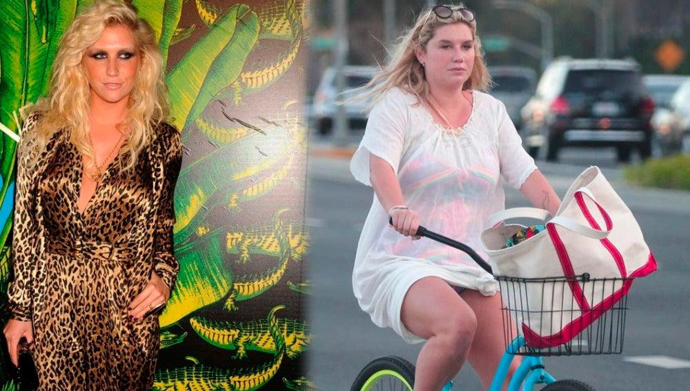 Kesha antes y después de su espectacular cambio