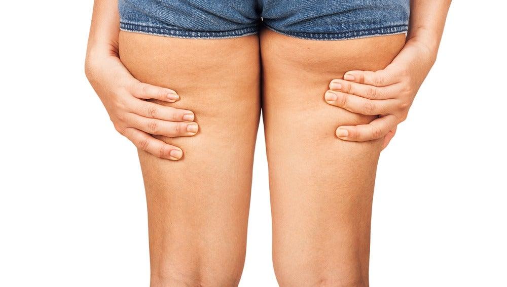 Celulitis en las piernas