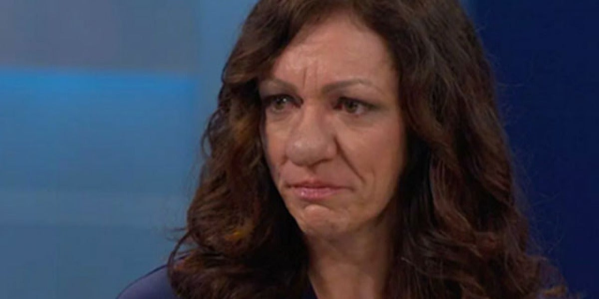 Pamela Ichard sufre rinofima