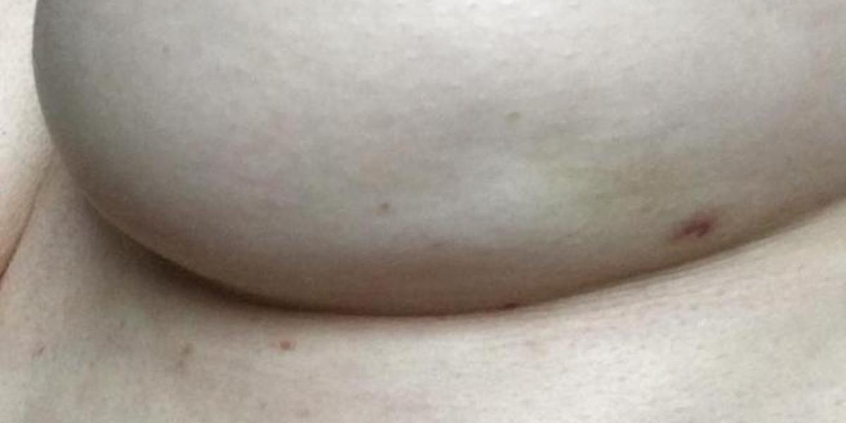 La foto del pecho izquierdo de Clara Warner presenta un hoyuelo, síntoma del cáncer de mama