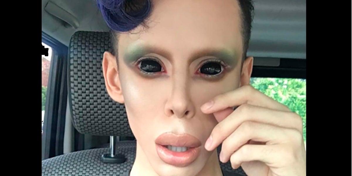 Vinny Ohh, el joven que se ha transformado en 'alien'