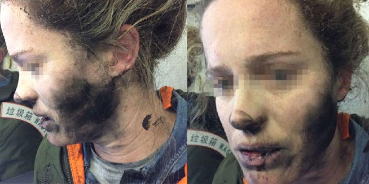 Una joven sufre quemaduras en la cara después que que estallasen sus auriculares