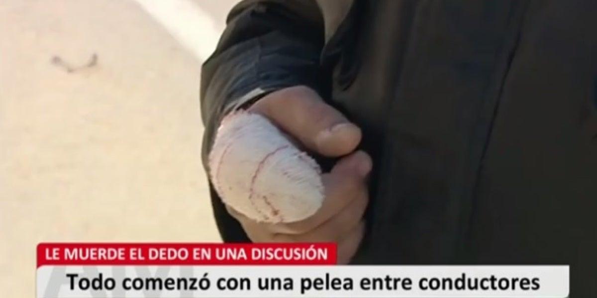 Un hombre arranca el dedo de un mordisco a otro tras una discusión de tráfico