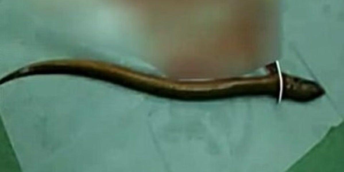 Extirpan una anguila del intestino de un hombre