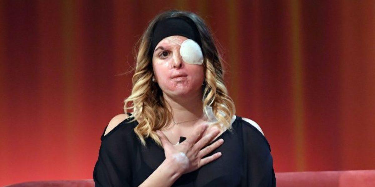 Gessica Notaro, finalista de Miss Italia agredida con ácido por su exnovio