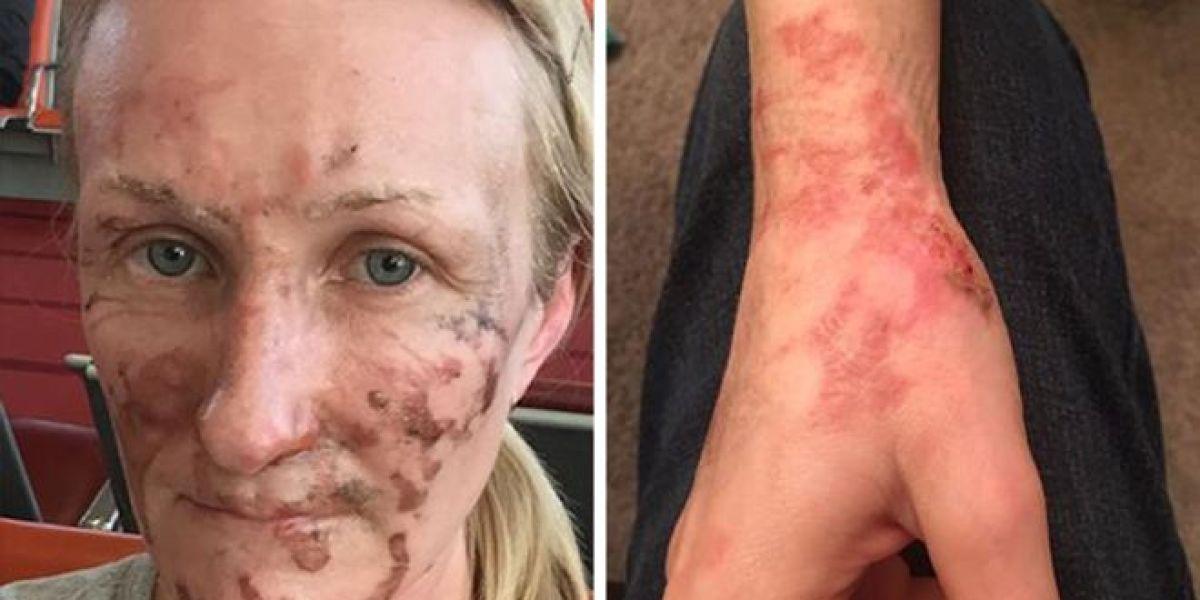 Erica Osbourne, víctima de las quemaduras