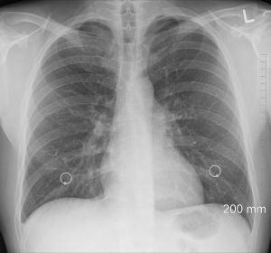 Científicos descubren una nueva solución que frena la metástasis en el pulmón
