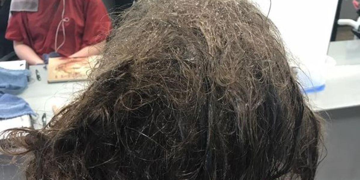Estado del pelo con el que llegó la adolescente deprimida