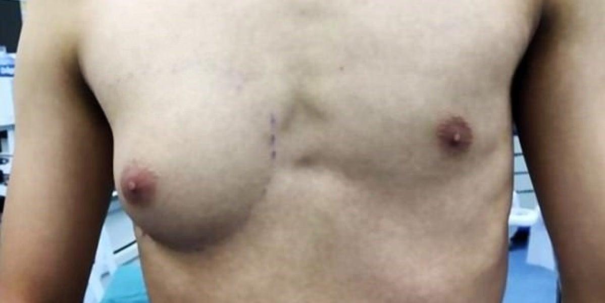 Torso del adolescente afectado por la ginecomastia