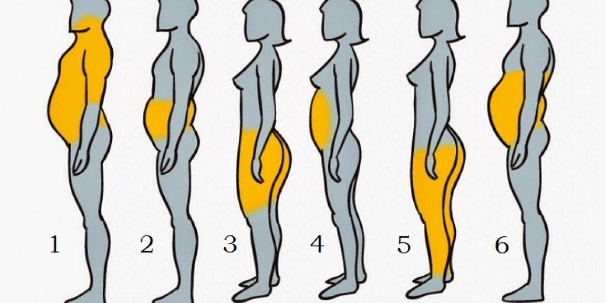 Los seis tipos de obesidad que existen