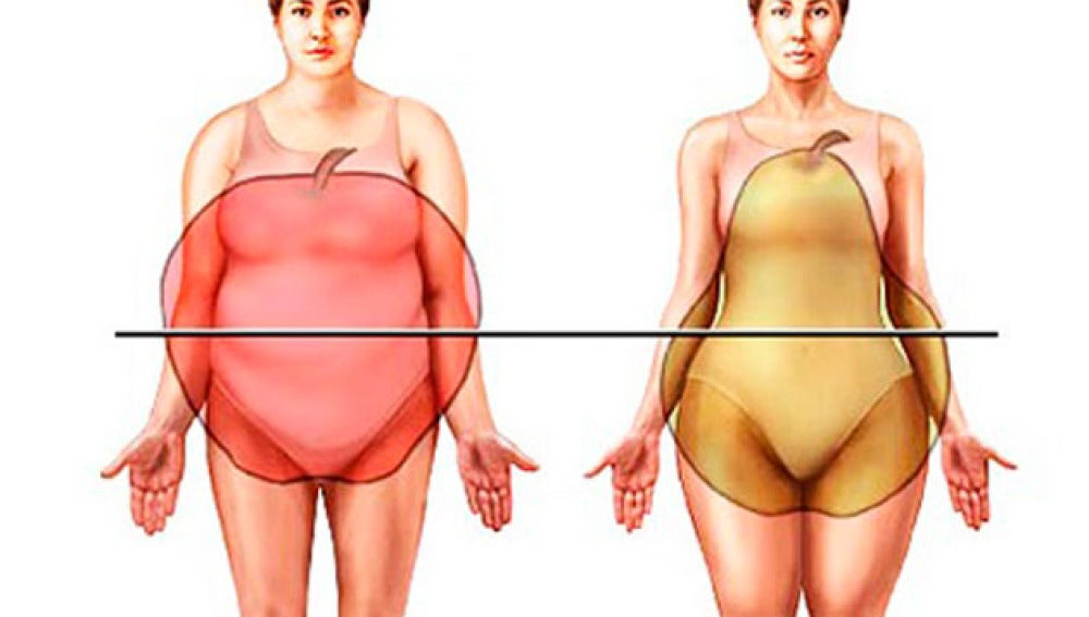 Los dos grandes tipos de obesidad
