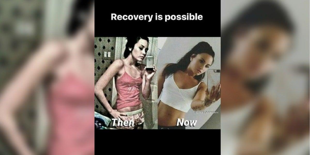 Demi Lovato comparte una foto de su lucha contra la bulimia
