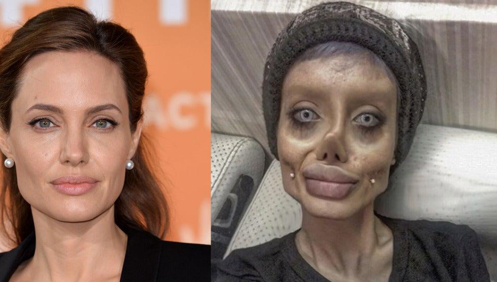 Se opera más de 50 veces para parecerse a Angelina Jolie
