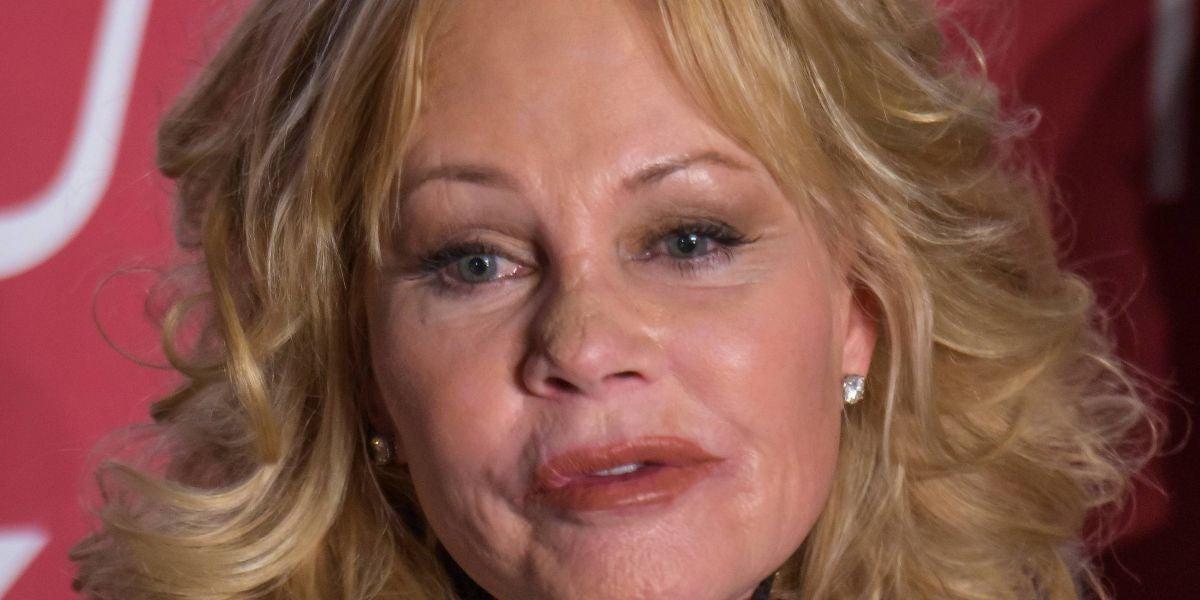 Algo le ha pasado en la cara a Melanie Griffith