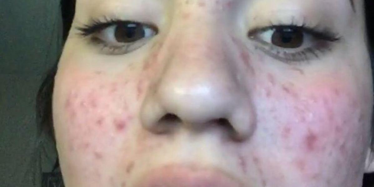 Karina, la joven que consiguió eliminar el acné con productos naturales