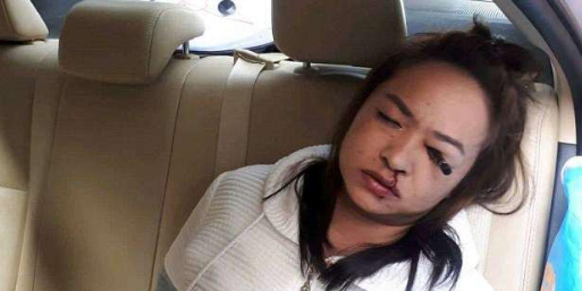 Se clava un lápiz en el ojo por maquillarse dentro de un taxi en marcha