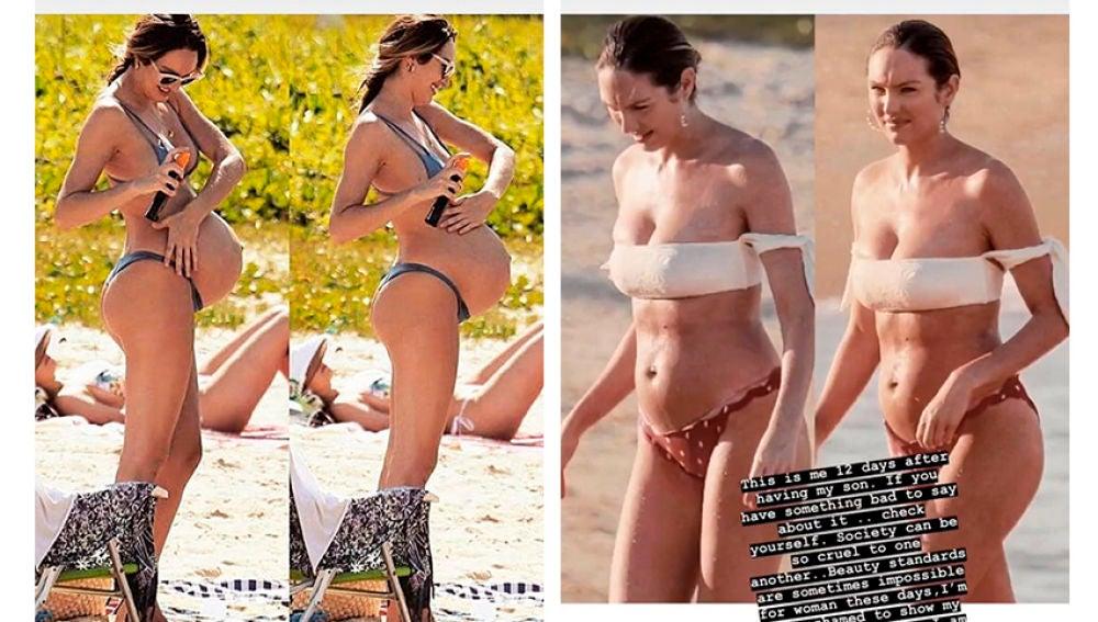 La modelo de Victoria's Secret Candice Swanepoel después de dar a luz