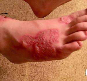 La infección parasitaria de Michael Dumas