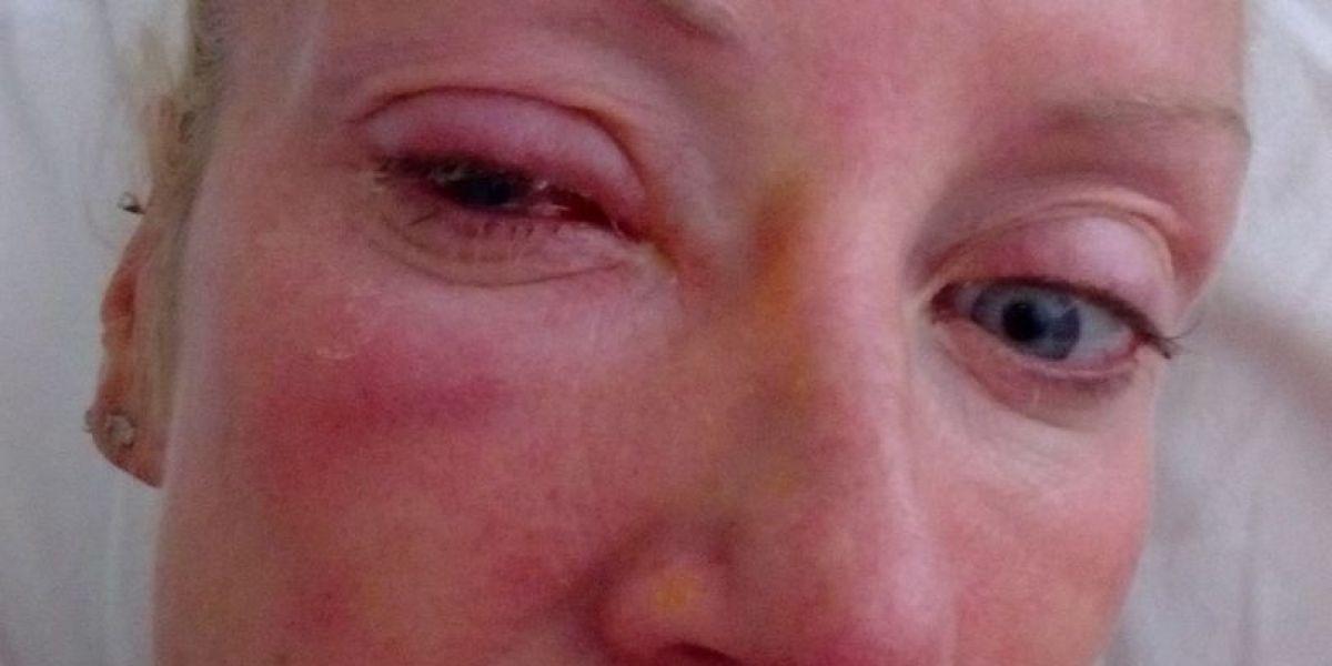 Suzzane Dunne ciega tras devorarle la córnea un parásito