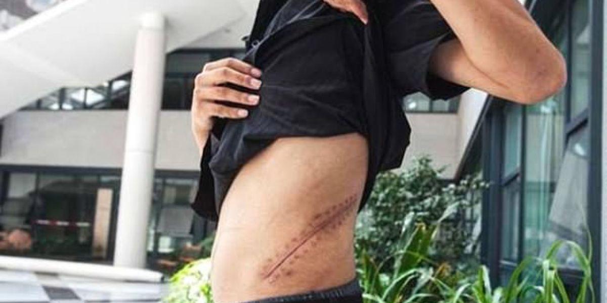 Xiao Wang muestra su cicatriz.