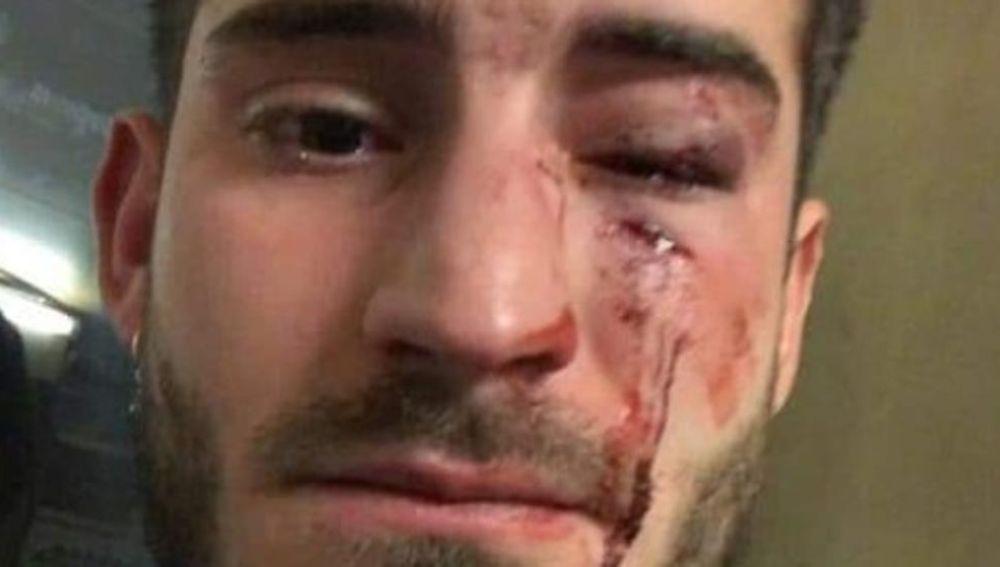 Imagen de la víctima de la agresión en el metro de Barcelona.