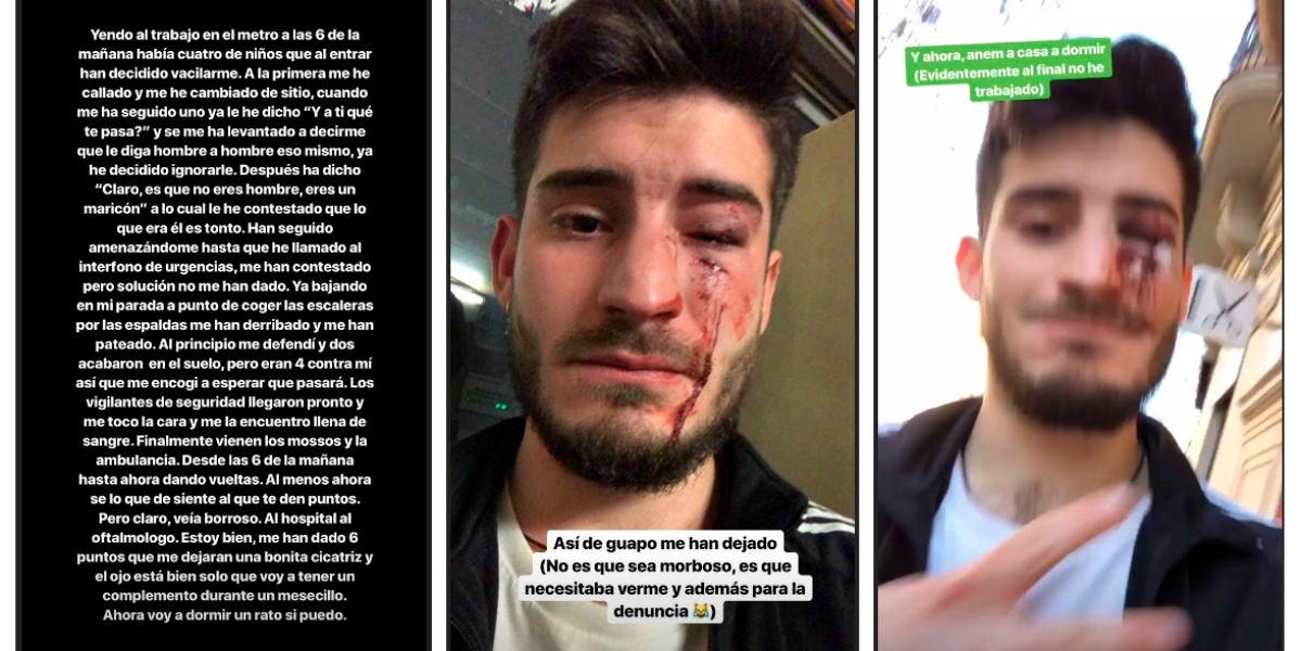 La víctima de la agresión homófoba en el metro de Barcelona denuncia los hechos en las redes sociales