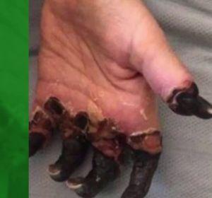 Amputan las piernas y la mano de una mujer por un diagnóstico erróneo de su médico