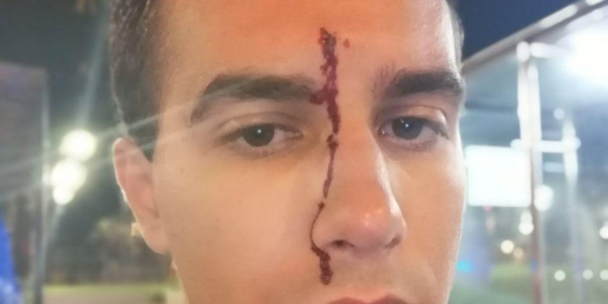 El periodista Xavier Martínez tras sufrir una agresión homófoba