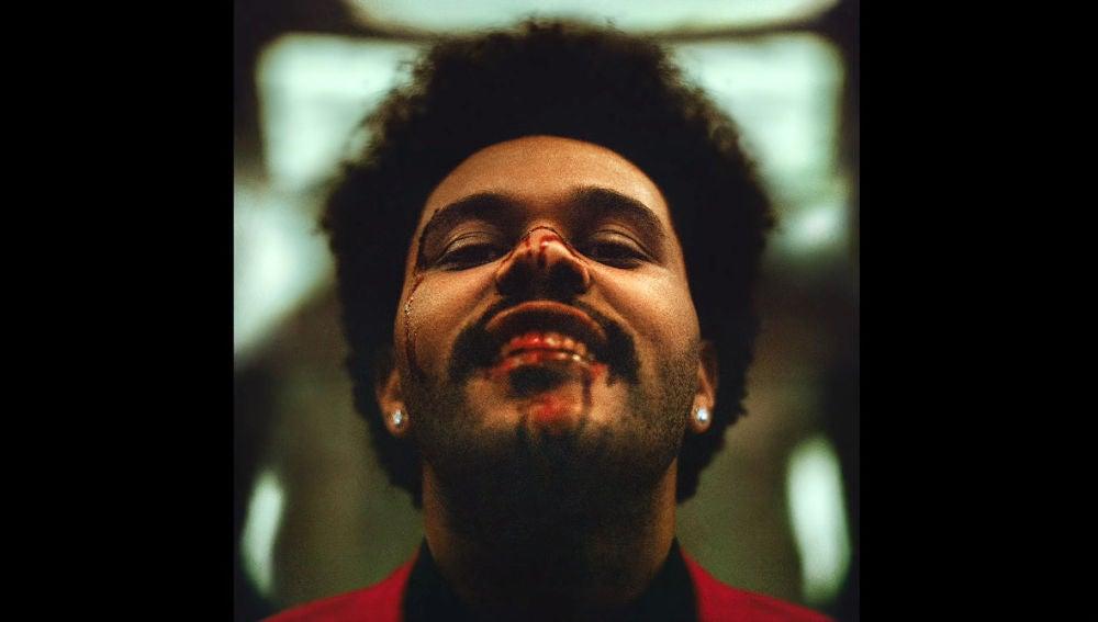 The Weeknd en la portada de su álbum 'After Hours'