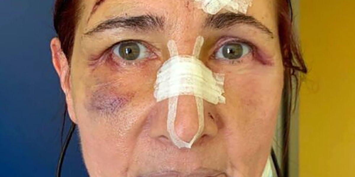 Stefania Buonpensiero, la mujer agredida
