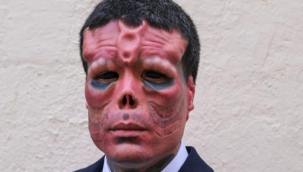 El hombre que se ha operado para parecerse a Red Skull, el villano de Capitán América