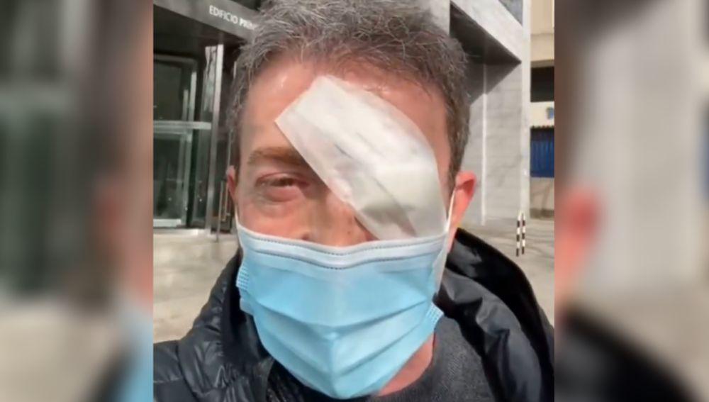 Pablo Motos con un ojo vendado
