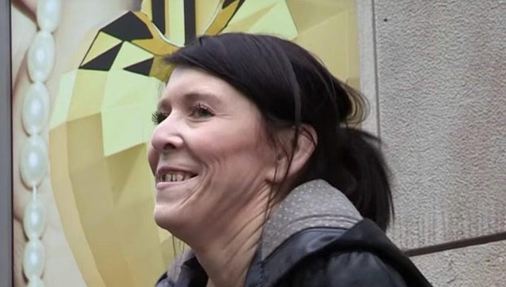 Zara Hartshorn sufre lipodistrofia, una enfermedad rara que hace que su piel no tenga elasticidad