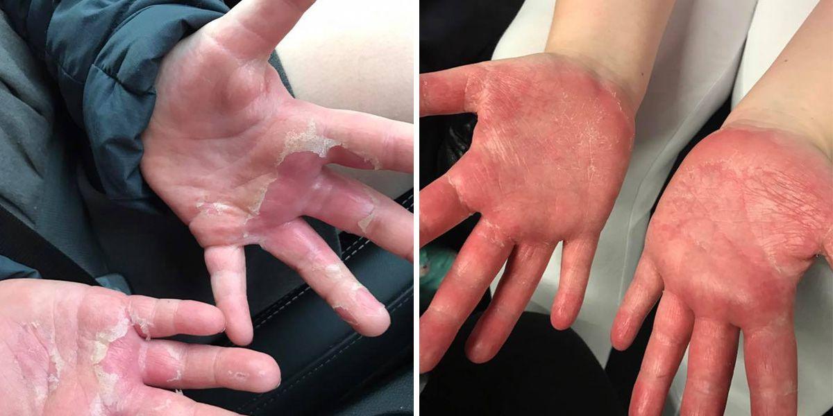 Una niña sufre quemaduras en las manos tras hacer slime casero con bórax