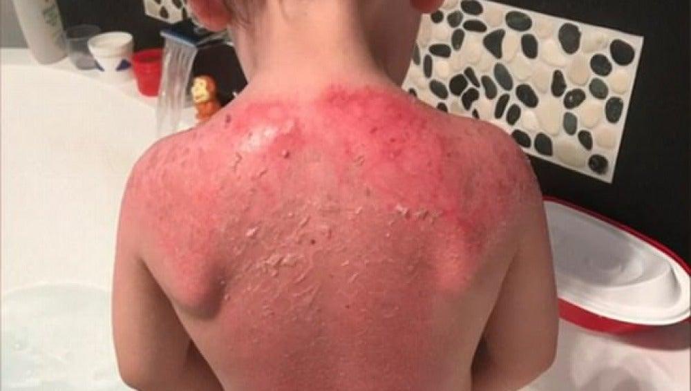 Un niño sufre graves quemaduras