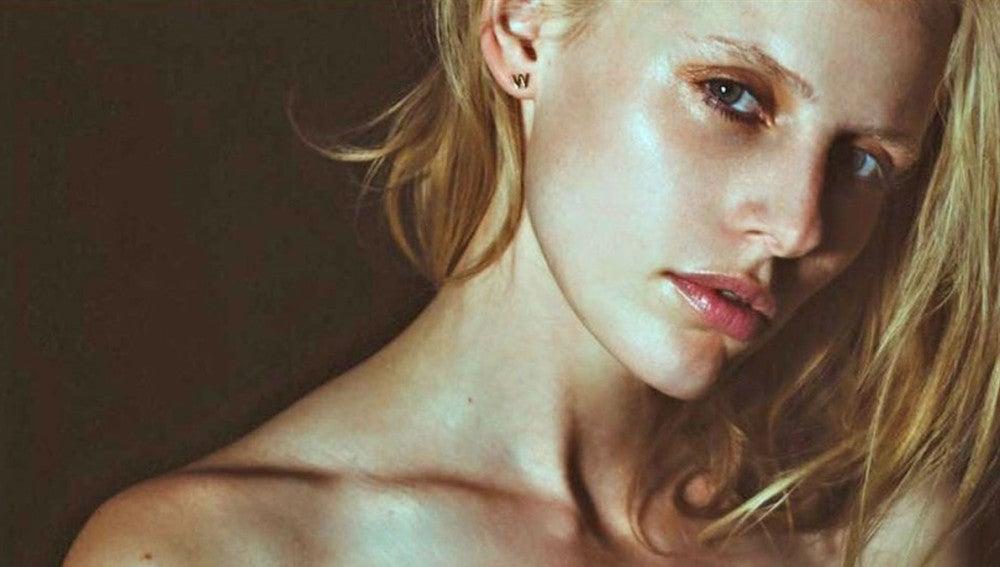 La modelo Lauren Wasser