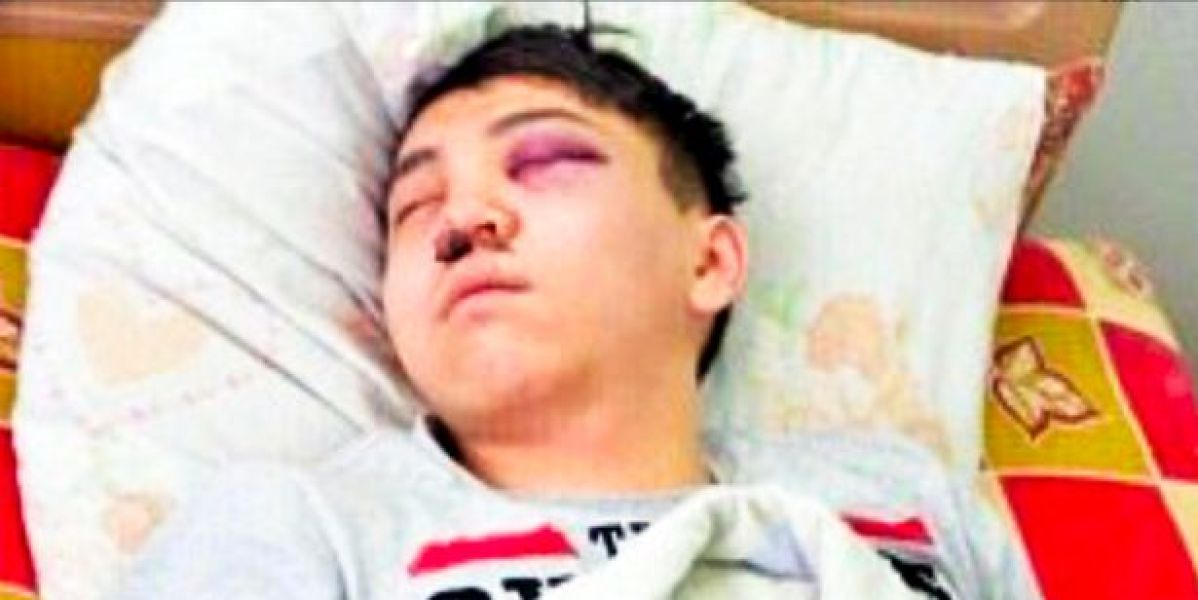 El hombre agredido por Zhanna Nurzhánova