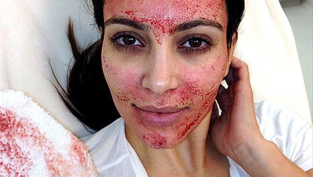 Kim Kardashian inyectándose en la cara su propia sangre