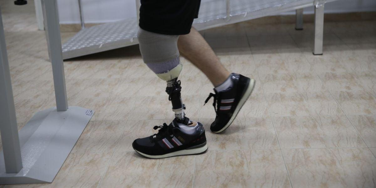 un hombre con su prótesis